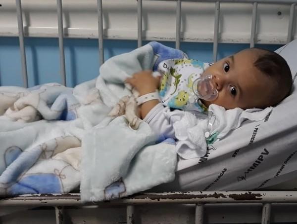 Cirurgiões de seis estados do país operam bebê com malformação rara