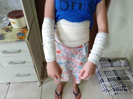 Menina sofre queimaduras de segundo grau em explosão com galão de álcool