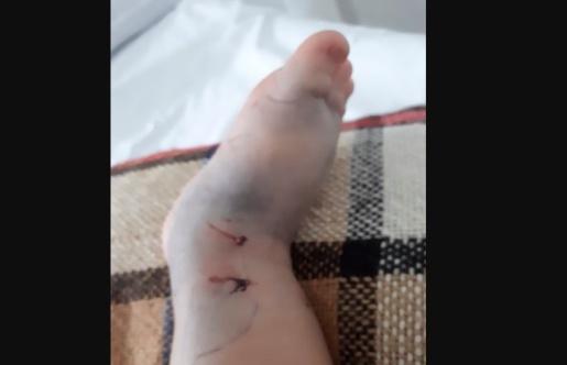 Menino picado por Jararaca no Paraná recebe alta hospitalar